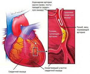 Закупоренная артерия